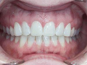 virtual smile assessment